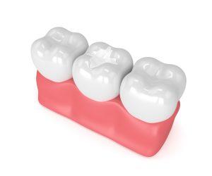 three healthy and glistening teeth