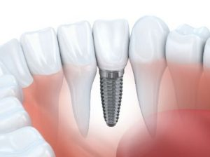 Image of a dental implant in the jaw