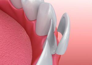 porcelain veneer shells added to teeth