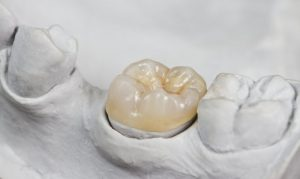 A dental crown sitting in a fabricated jaw.